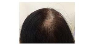 女性 の「抜け毛」の原因は ホルモンバランスの乱れと頭皮環境の悪化