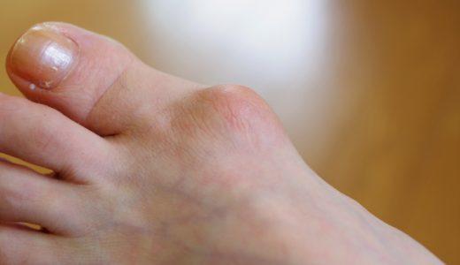 外反母趾の治し方 足のアーチを矯正すれば必ず治る!!